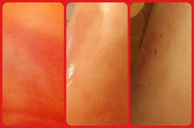 Kristi's burns